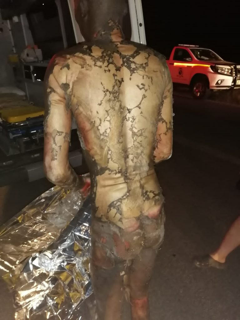 severely burned suspects succumb to their injuries
